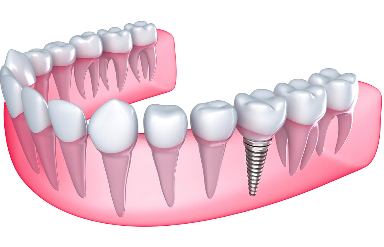 Implant Dentist at Mark H Wright DDS in Colorado Springs CO Area