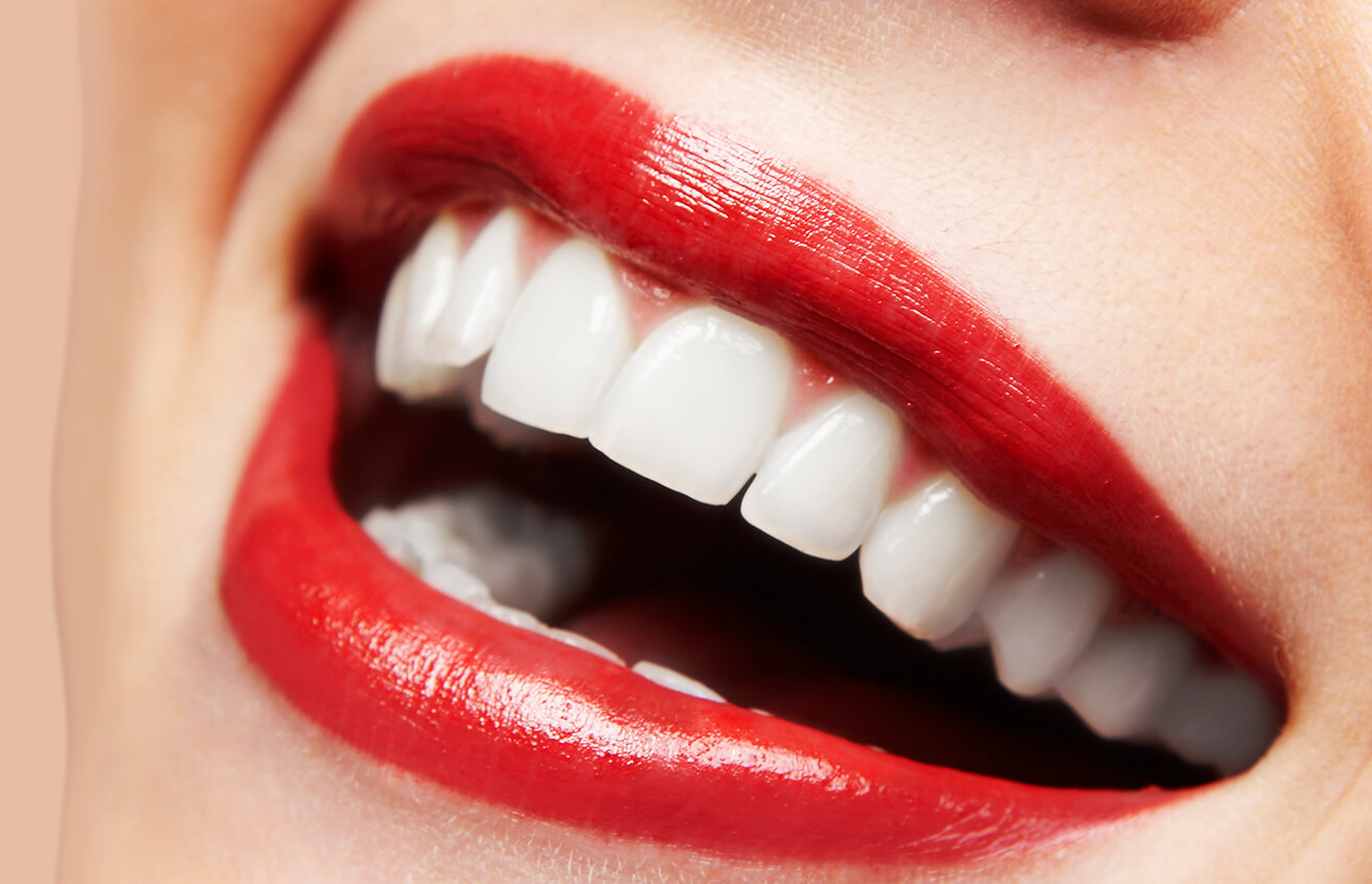 Professional Teeth Whitening at Mark H Wright DDS in Colorado Springs CO Area